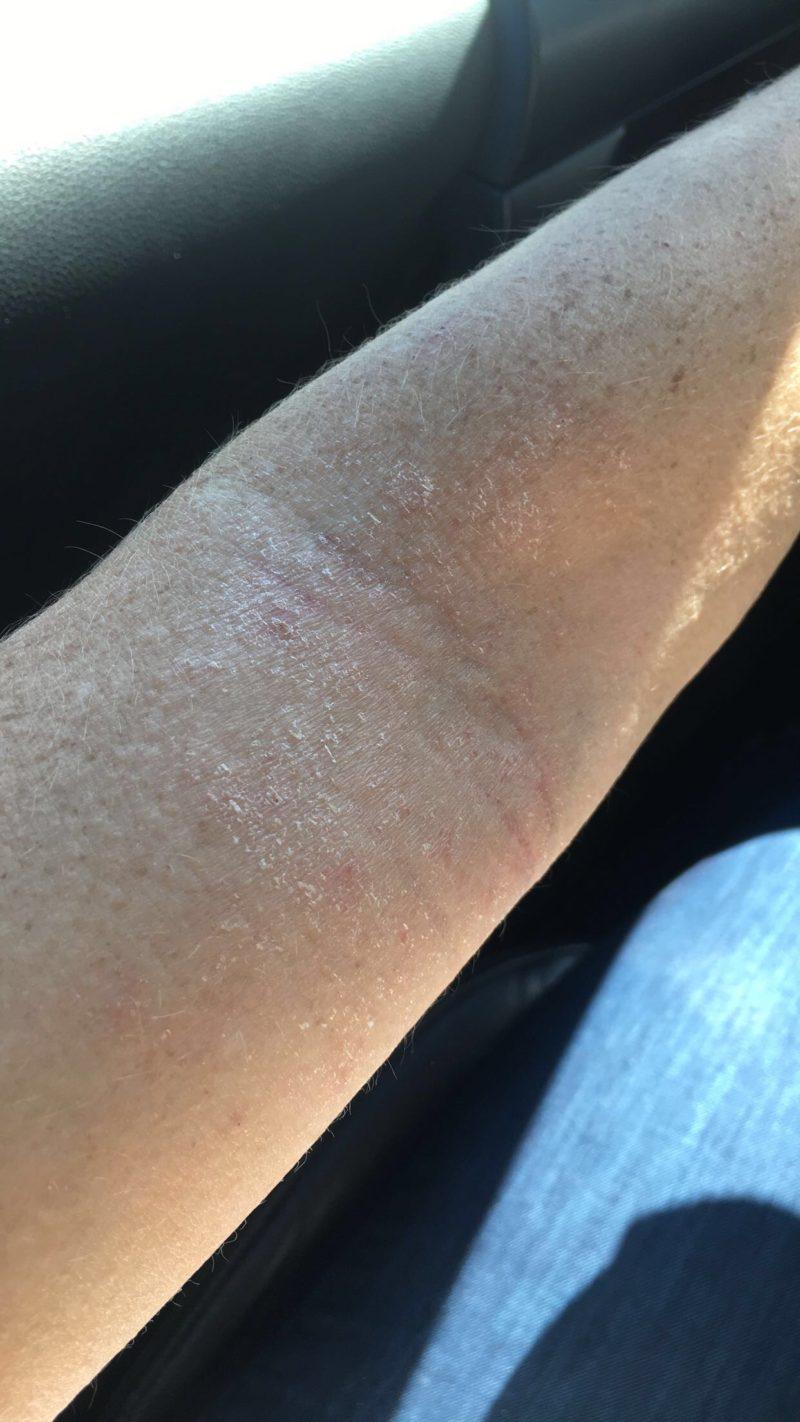 Eczema Causes Allergy Shots What Eczema Looks Like