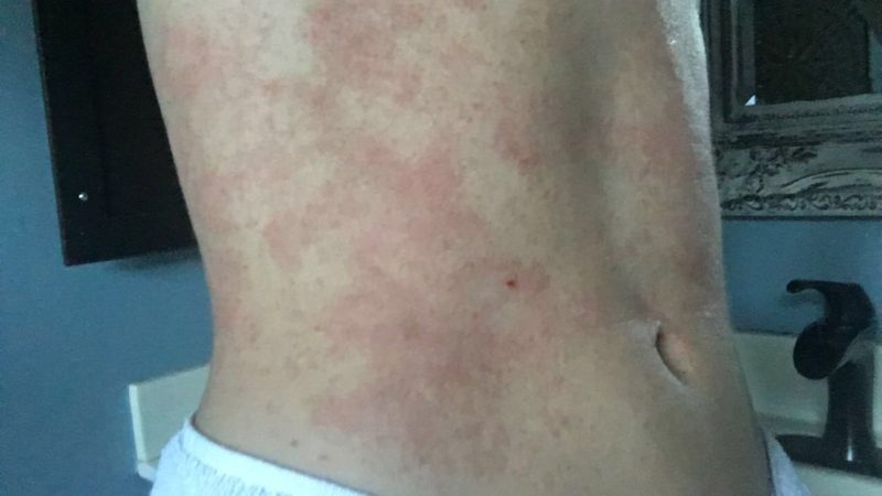 symptoms eczema causes home dermatitis pictures rings nummular treatment