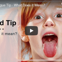 Red Tongue Tip - What Does It Mean?