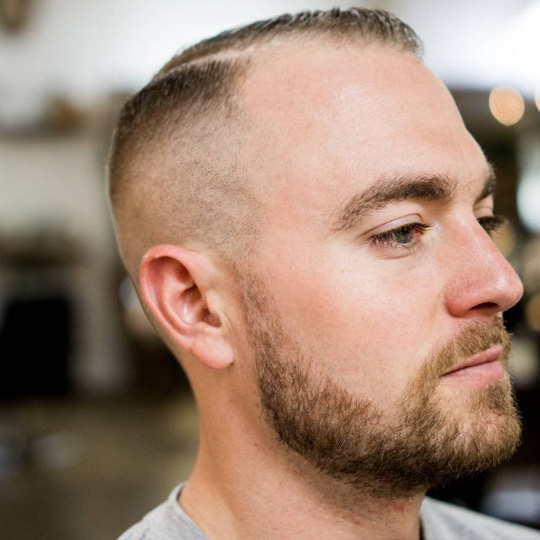 Number 2 haircut receding the best haircut 2017 best haircuts for balding guys business insider a number winobraniefo Choice Image