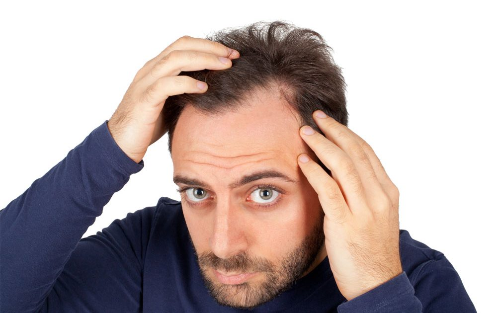 Receding Hairline: Stages Causes Treatments & Solutions ...