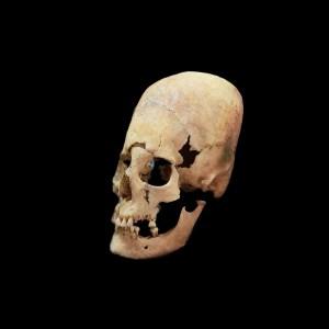 Paracas Skulls