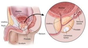 Prostate Cancer: a clear case of res ipsa loquitur & why corporate entities must intervene!