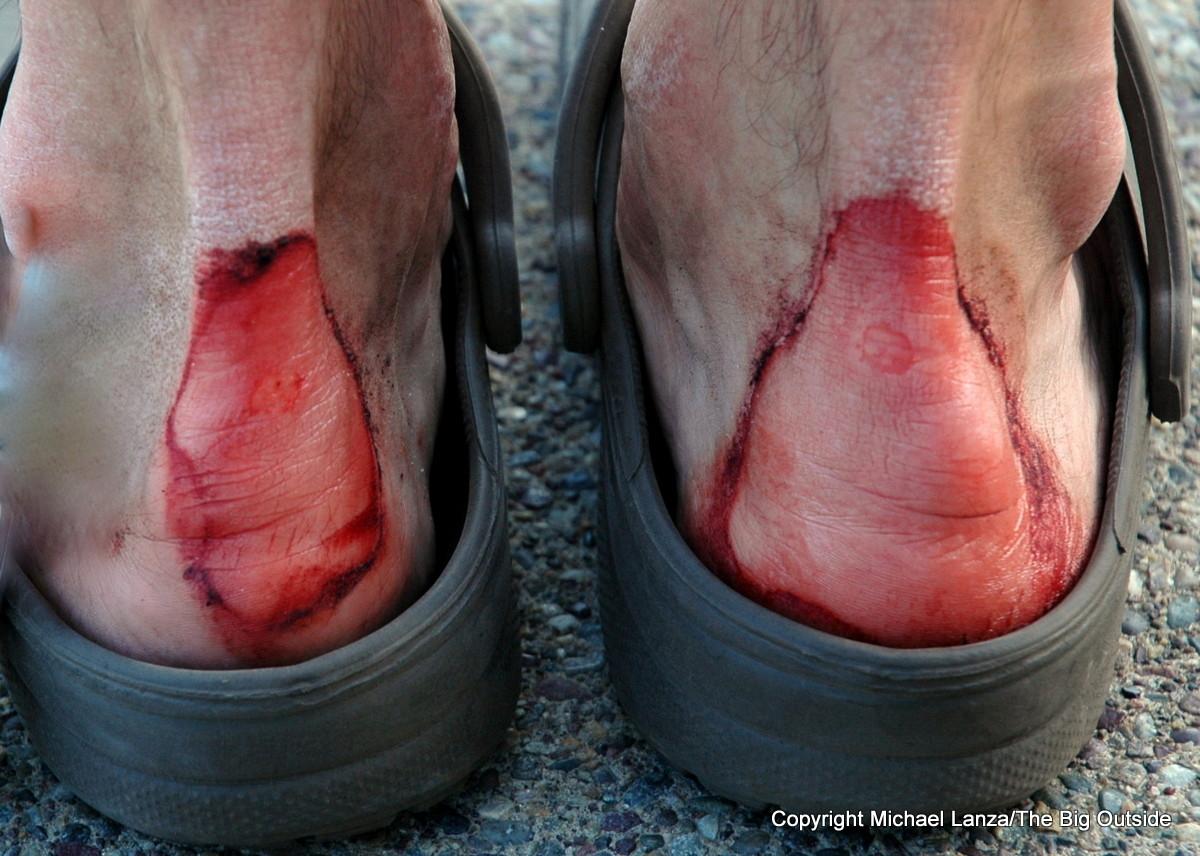 Bad heel blisters on a hiker's feet.