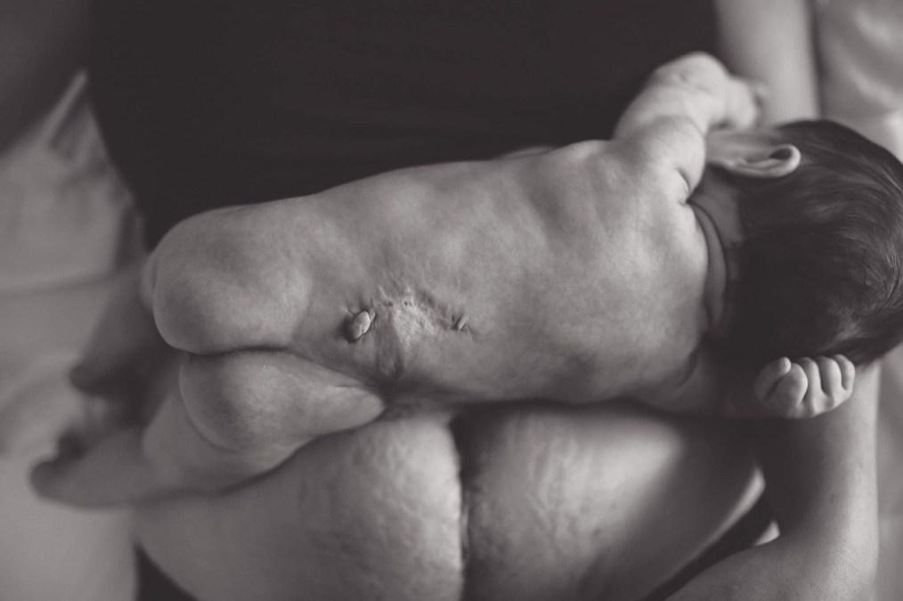 Spina Bifada and Successful Fetal Surgery
