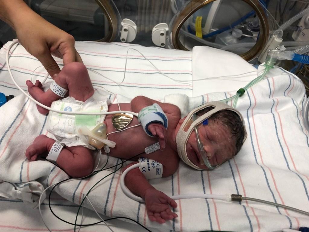 preeclampsia HELLP birth story