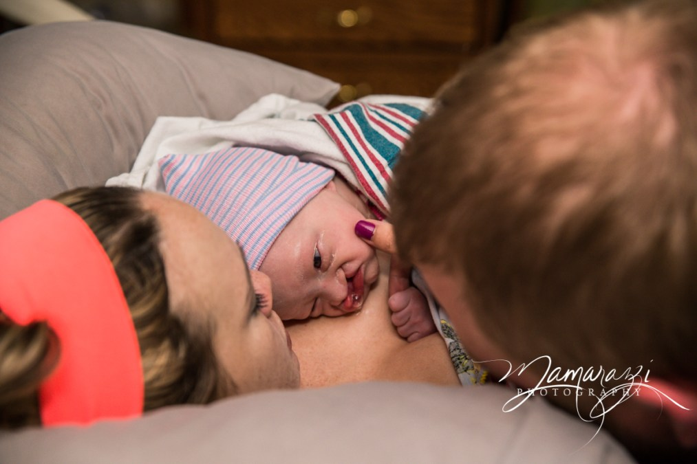 Cleft Lip & Palate, Healing Induction with Epidural + Birth Center Birth During COVID