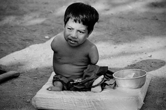 visiting vietnam 40 years post war warning some graphic images