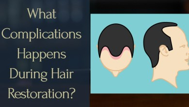 Photo of What Complications Happens During Hair Restoration?