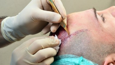 Photo of 11 Cases In Which You Should Not Get a Hair Transplant