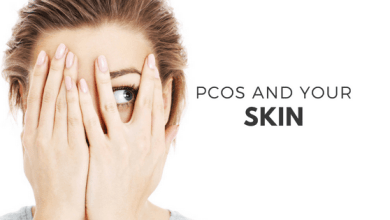 Photo of PCOS Overview and Its Causes & Symptoms