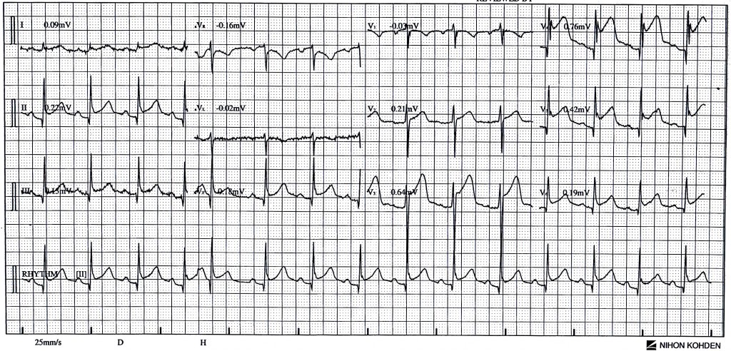 Assault ECG01 - June 18 @ 946pm