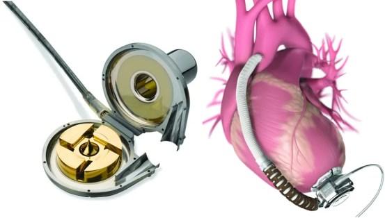 Figure 2 HeartWare HVAD
