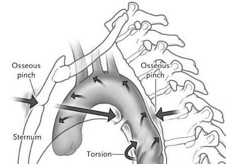 "Osseous pinch theory for Blunt Aortic Injury *adapted from ""decode-medicine.blogspot.com.au"""