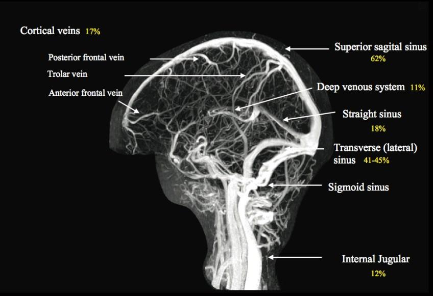 Cerebral Venous Anatomy Thebluntdissection