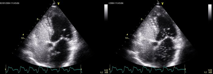 Transthoracic echocardiography showing contrast medium passing through the patent foramen ovale. Courtesy of Rev Esp Cardiol. 2011;64:133-9.