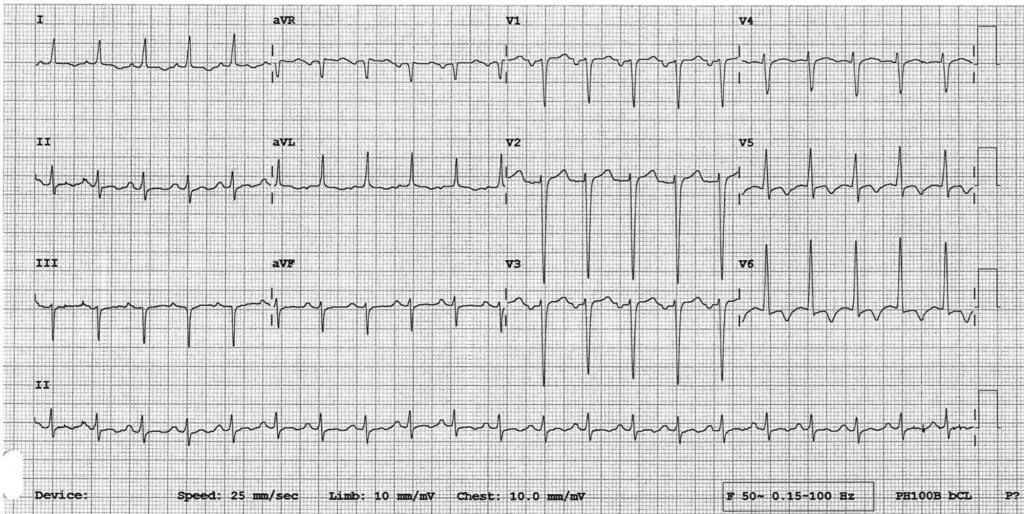 LV thrombus ECG, Left ventricular thrombus