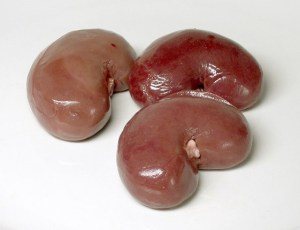 Kidney 1