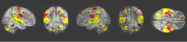 Areas of the brain activated by music: http://sciencenordic.com/how-music-touches-brain