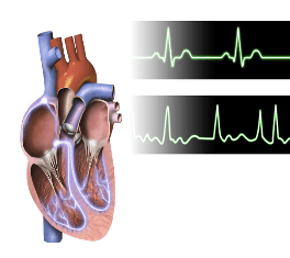 Top: Normal heart activity. Bottom: Heart fibrillation