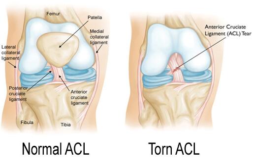 Normal-ACL - SnowBrains