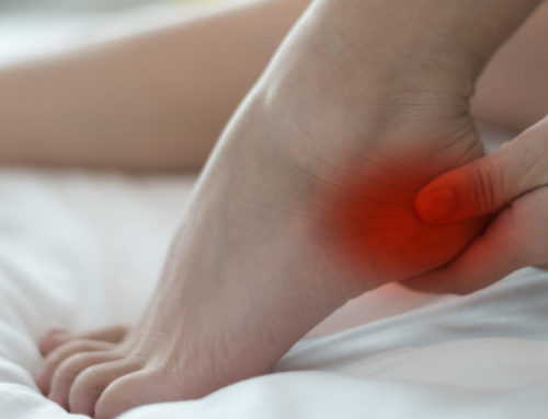 What is the Recovery Time for Heel Spur Surgery?