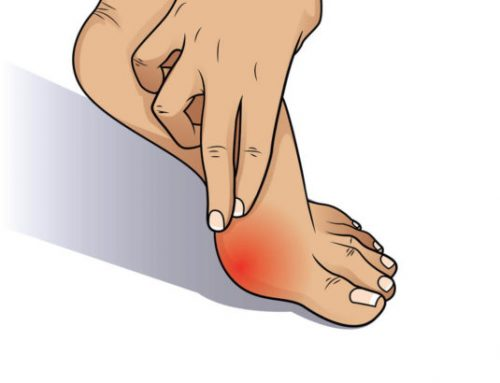 How to Treat Bunion Pain: Tips to Keep in Mind