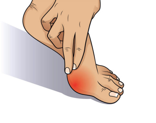 a red swollen area to learn how to treat bunion pain