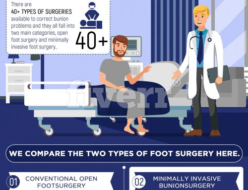 Bunion Surgery Options Today Infographic