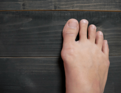 Minimally Invasive Bunion Removal Surgery