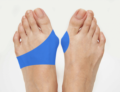 Do Bunion Pads Really Work?