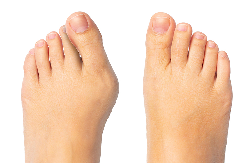 bunion surgery recovery tips