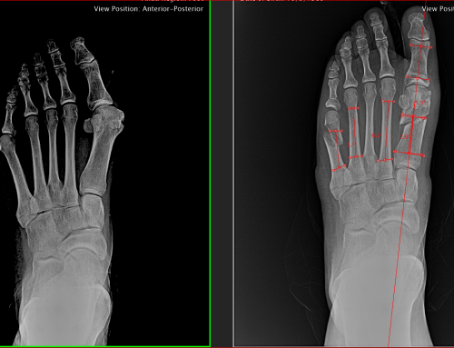 Bunion Surgery Options Today