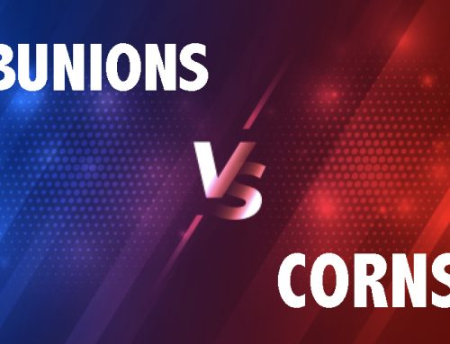 Bunions vs Corns: What's the Difference?