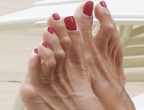Minimally Invasive Hammertoe Surgery