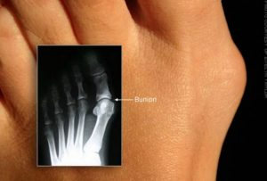 Foot problems and Surgeries