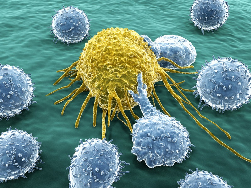 cancer cell attacked by lymphocytes (white cells)
