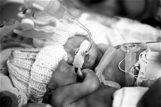 Maggie (foreground) and Abby lay side by side in the Neonatal Intensive Care Unit at Abbott Northwestern Hospital in Minneapolis.