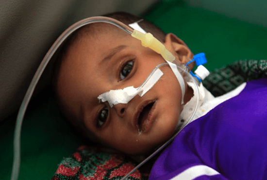 A malnourished child receives treatment at a medical center in Sanaa, Yemen. Catholic and international aid organizations are pressing for an end to Yemen's worsening war, where the United Nations says one child dies every 10 minutes.