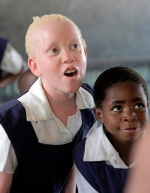 Annie Alfred, a Malawian girl with albinism, is pictured at school