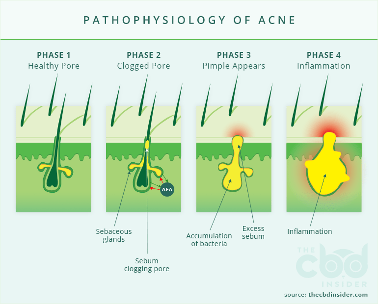 Pathophysiology of Acne