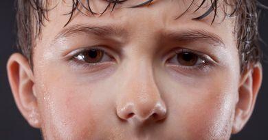 Hyperhidrosis - child sweating