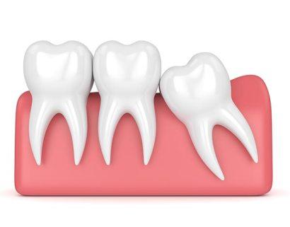 RCT teeth - Wisdom tooth