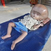 Heartbreaking story of 18-month-old Roona suffering from Hydrocephalus