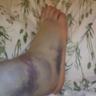 First sprain