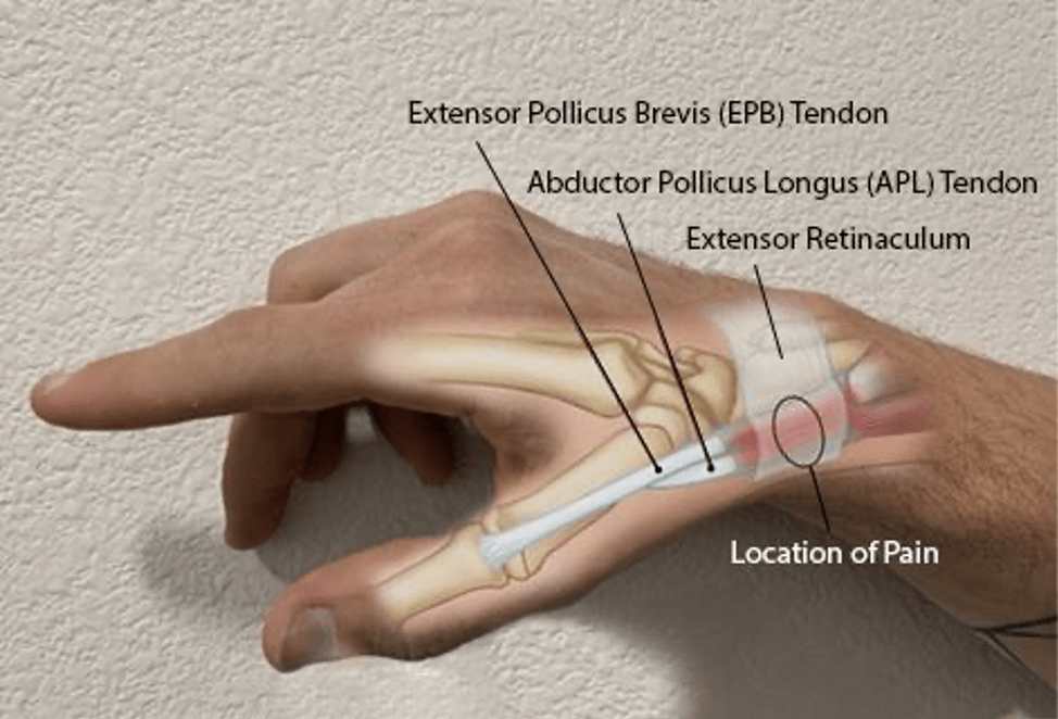 Thumb-Sided Wrist Pain in Climbers: A Case for De Quervain ...