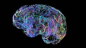 Brain Wires