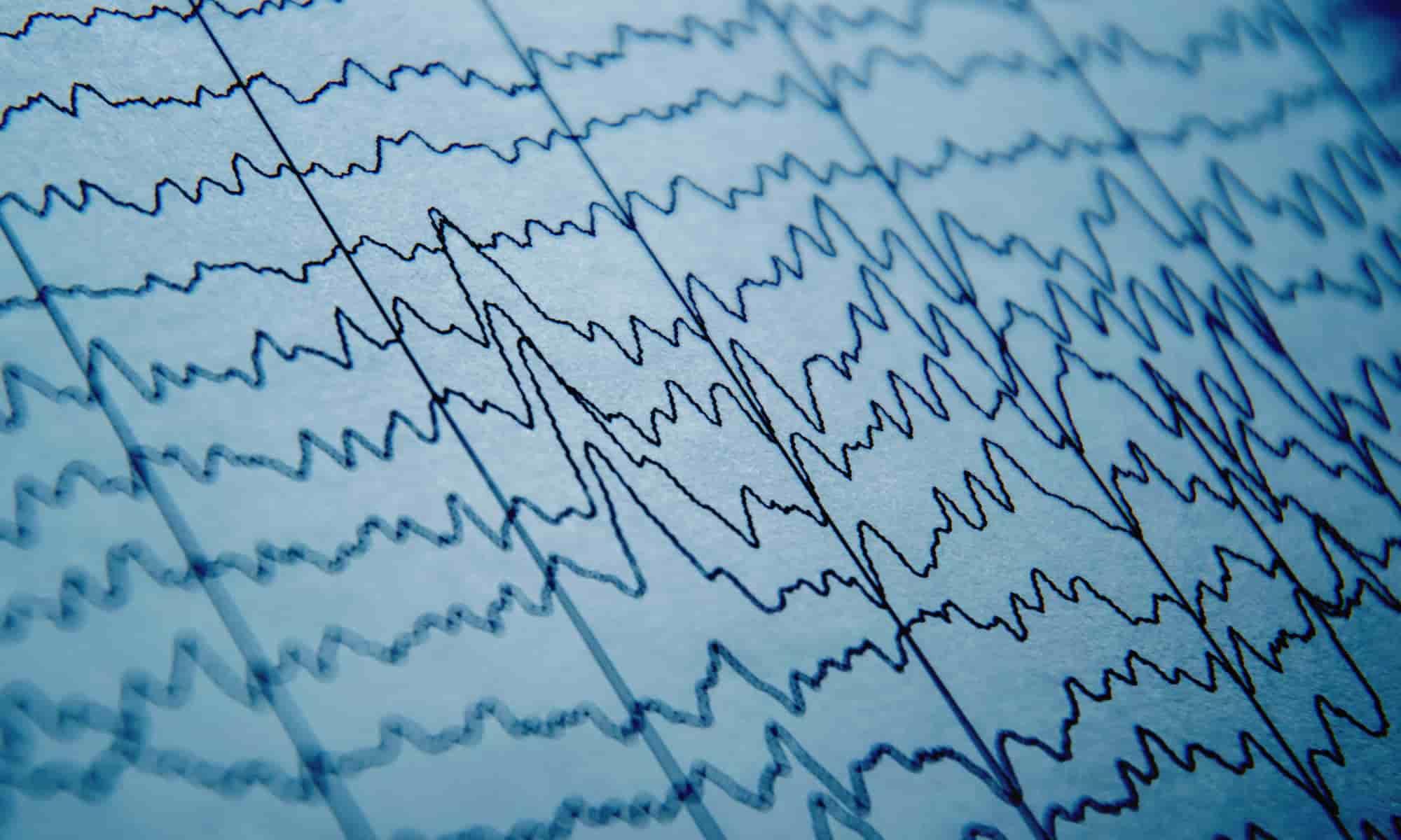 EEG Wave