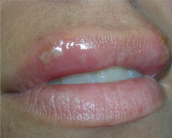 Cold Sore Stages (with Pictures) - The 5 Stages of Cold ...
