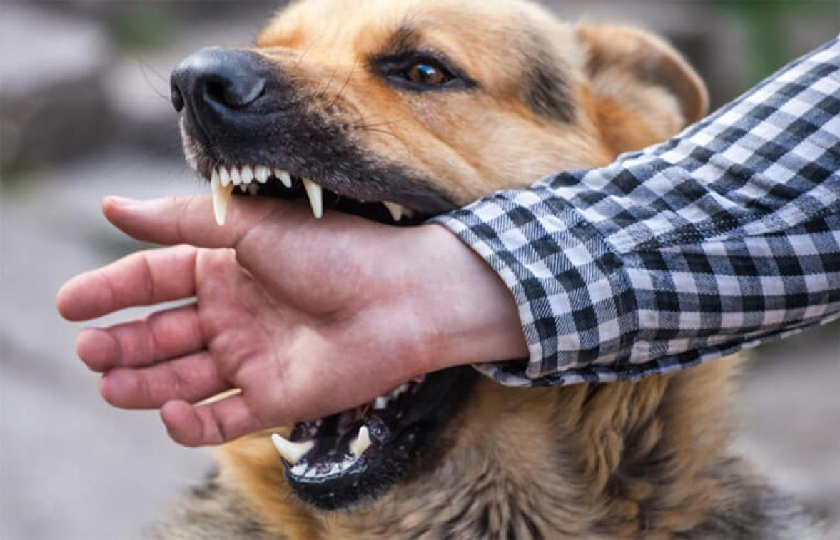 dog biting hand of owner